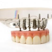 Protesi implantare